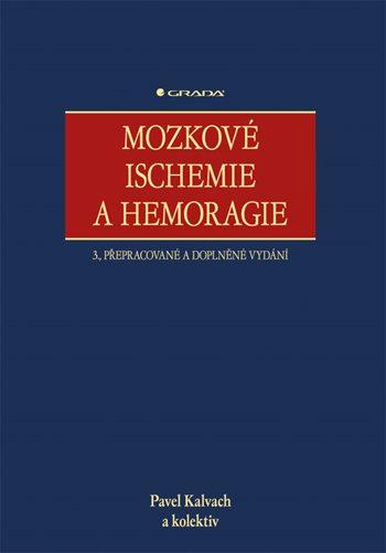 Mozkové ischemie a hemoragie