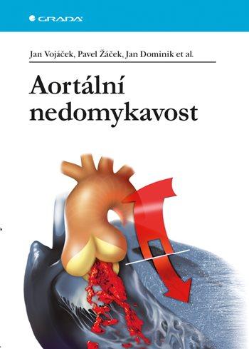 Aortální nedomykavost