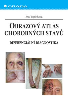 Obrazový atlas chorobných stavů