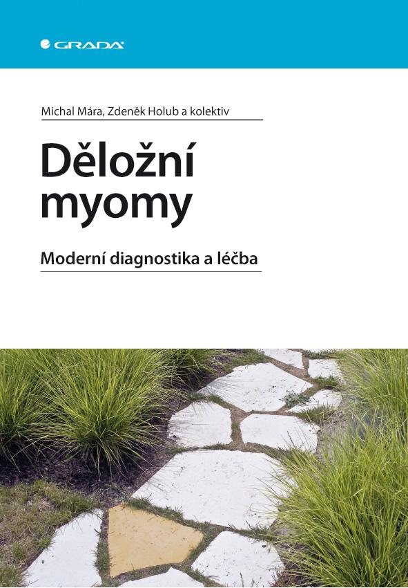 Děložní myomy, Moderní diagnostika a léčba