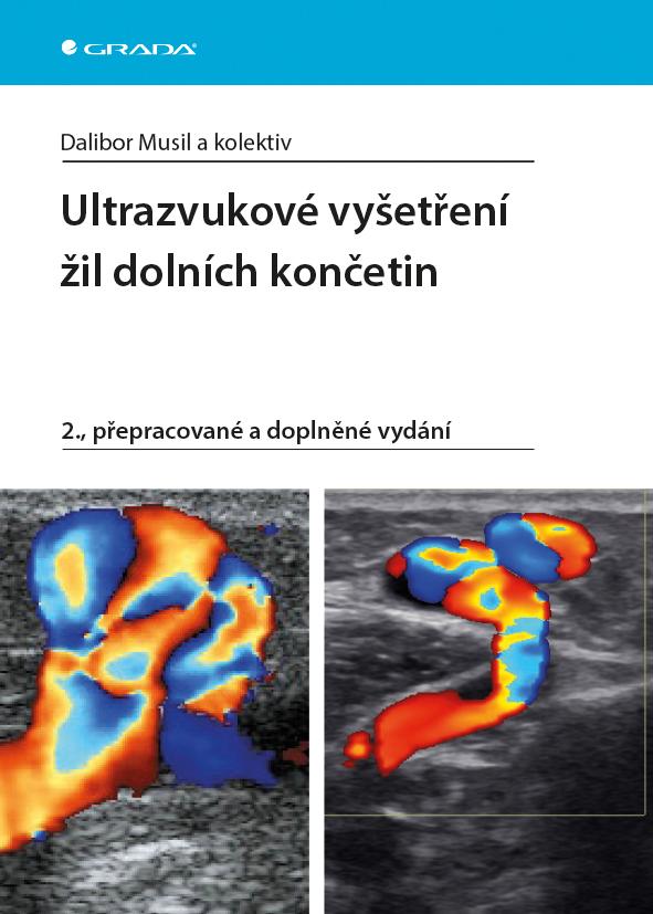 Ultrazvukové vyšetření žil dolních končetin, 2., přepracované a doplněné vydání